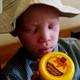 Albinismo: desde el Kilimanjaro hasta al CRISPR