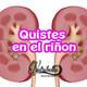 Nutribella - QUISTES EN EL RIÑON